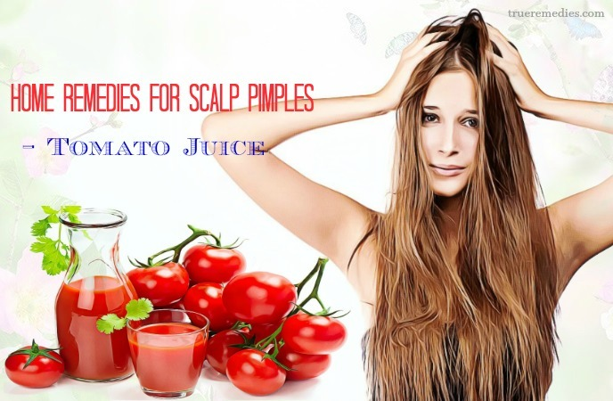 home remedies for scalp pimples - tomato juice