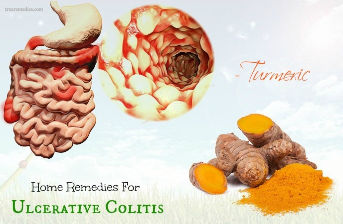 home remedies for ulcerative colitis - turmeric