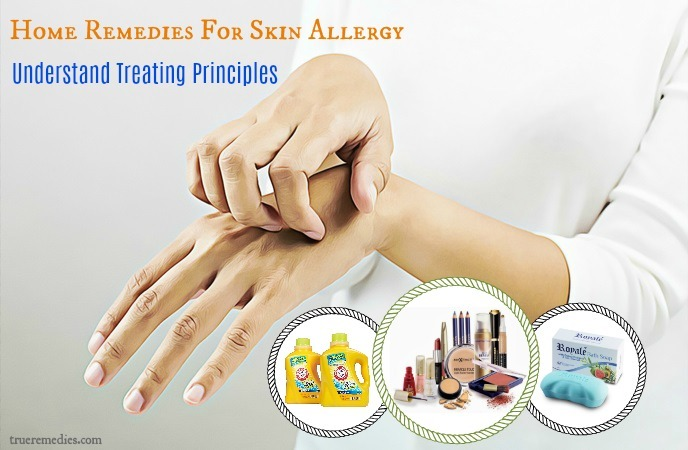 home remedies for skin allergy - understand treating principles
