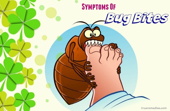 home remedies for bug bites - what are common symptoms of bug bites