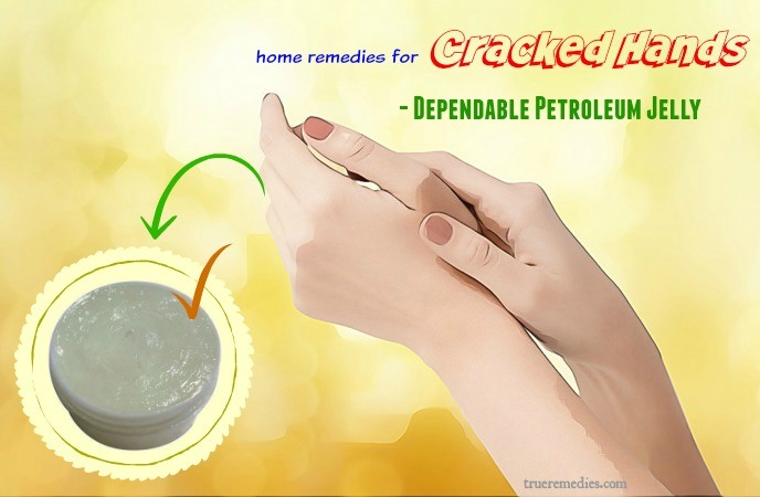 home remedies for cracked hands - dependable petroleum jelly