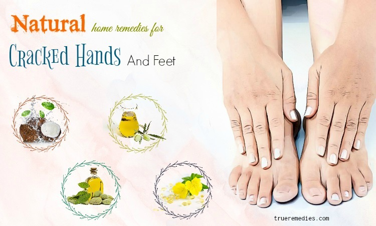 natural home remedies for cracked hands