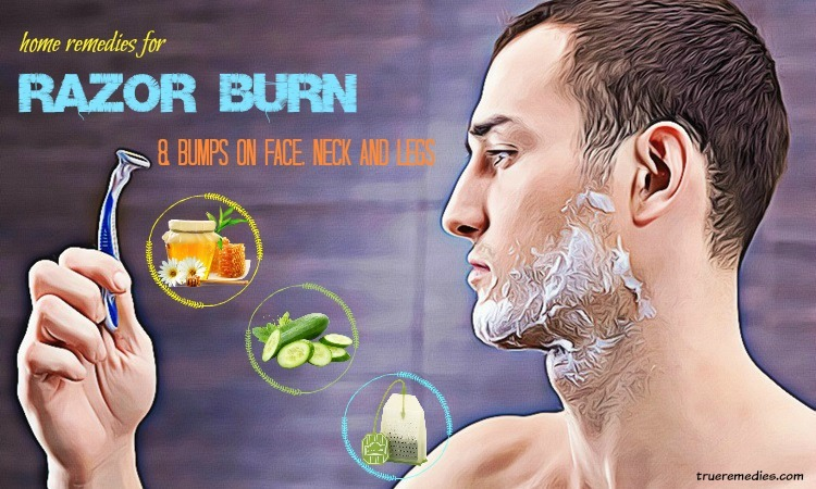 home remedies for razor burn on face