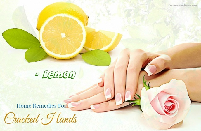 home remedies for cracked hands - lemon