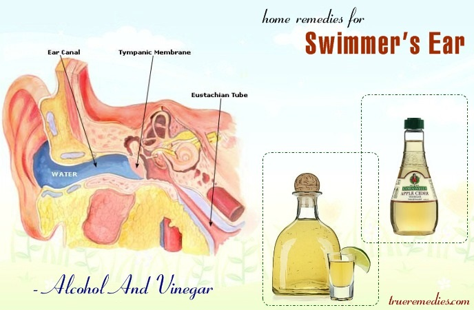 home remedies for swimmer's ear - alcohol and vinegar