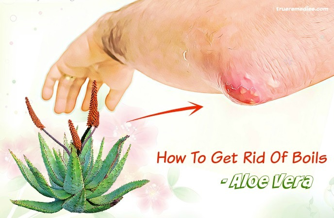 how to get rid of boils - aloe vera