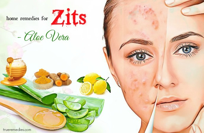 home remedies for zits - aloe vera