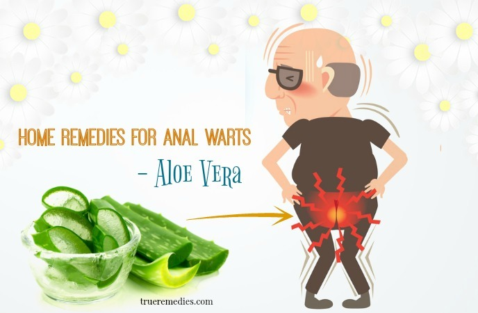 home remedies for anal warts - aloe vera