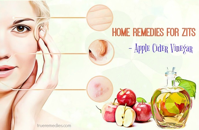 home remedies for zits under the skin - pple cider vinegar
