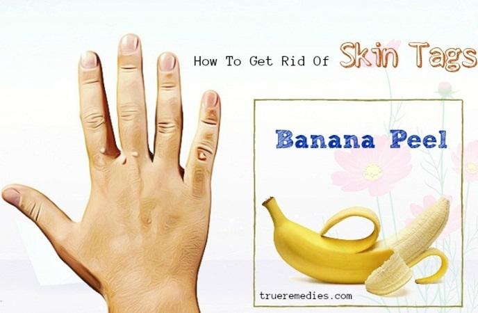 how to get rid of skin tags - banana peel
