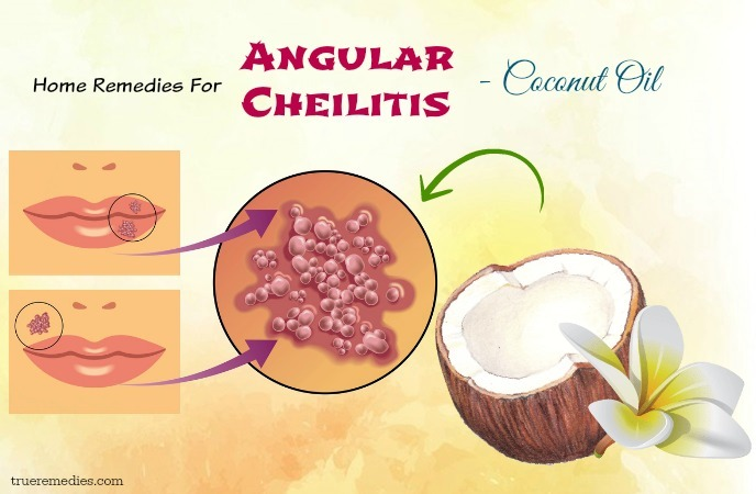 home remedies for angular cheilitis - coconut oil