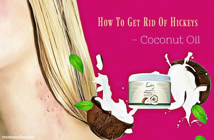 how to get rid of hickeys - coconut oil
