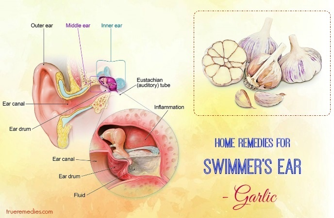 home remedies for swimmer's ear - garlic