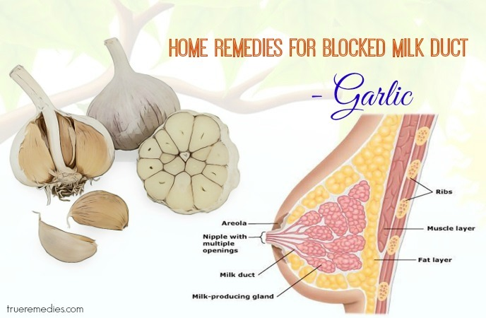 home remedies for blocked milk duct - garlic
