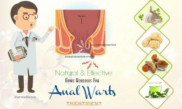 effective home remedies for anal warts