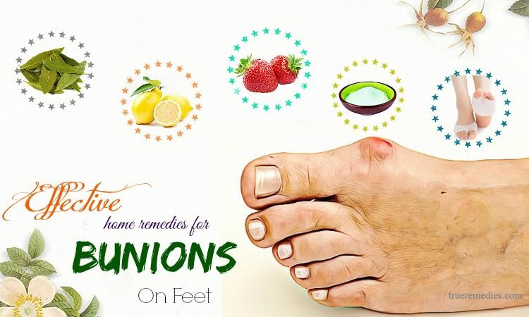 effective home remedies for bunions