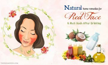 natural home remedies for red face when drinking alcohol
