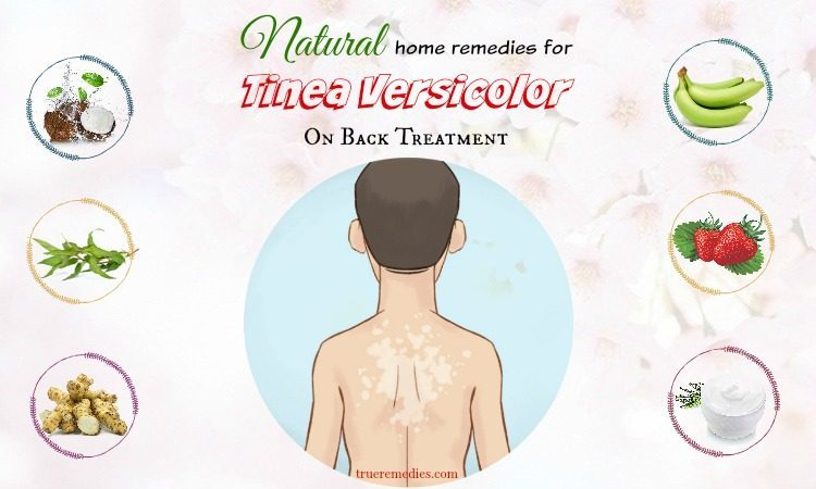 natural home remedies for tinea versicolor
