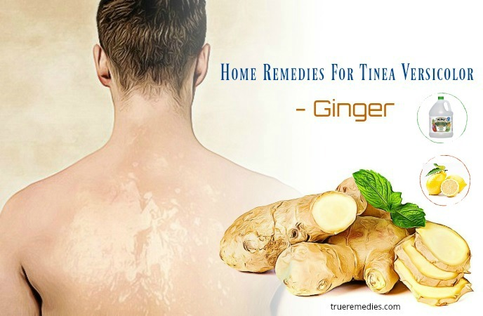 home remedies for tinea versicolor - ginger
