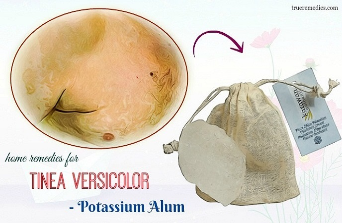 home remedies for tinea versicolor - potassium alum