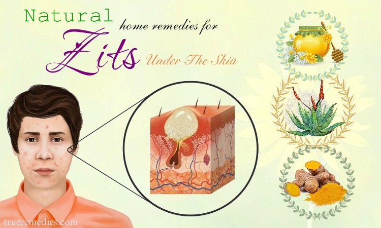 natural home remedies for zits
