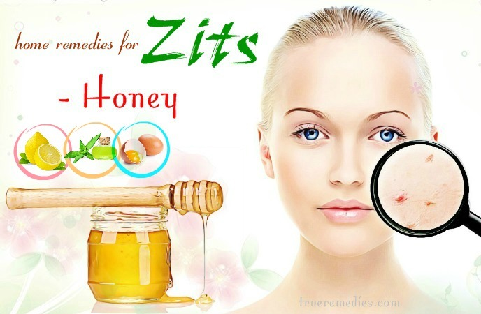 home remedies for zits - honey