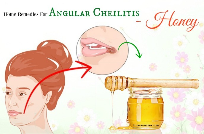 home remedies for angular cheilitis - honey