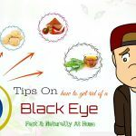 tips on how to get rid of a black eye