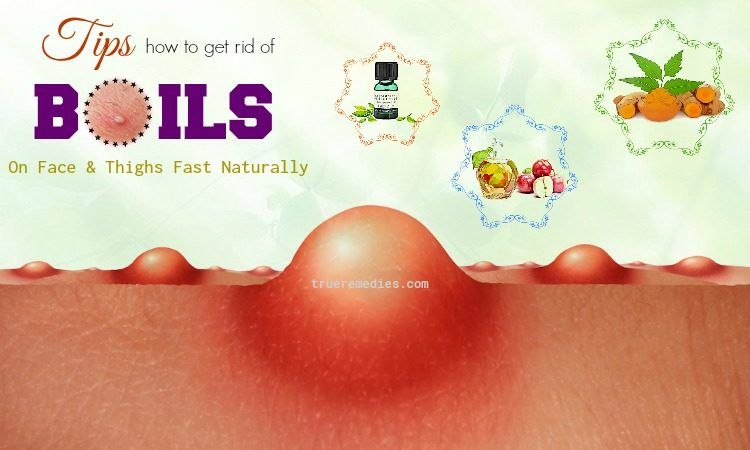 how to get rid of boils on face