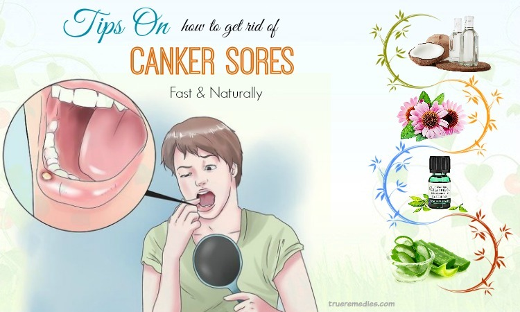 tips on how to get rid of canker sores