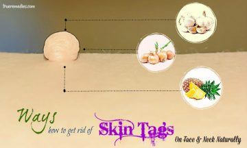 how to get rid of skin tags on face