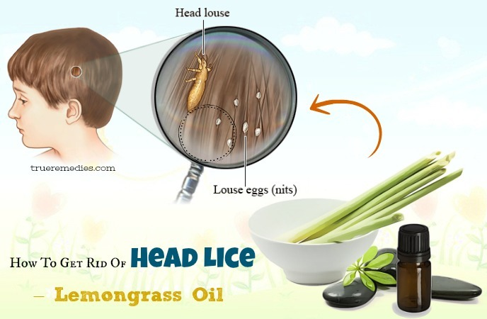 how to get rid of head lice - lemongrass oil