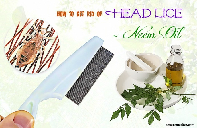 how to get rid of head lice - neem oil