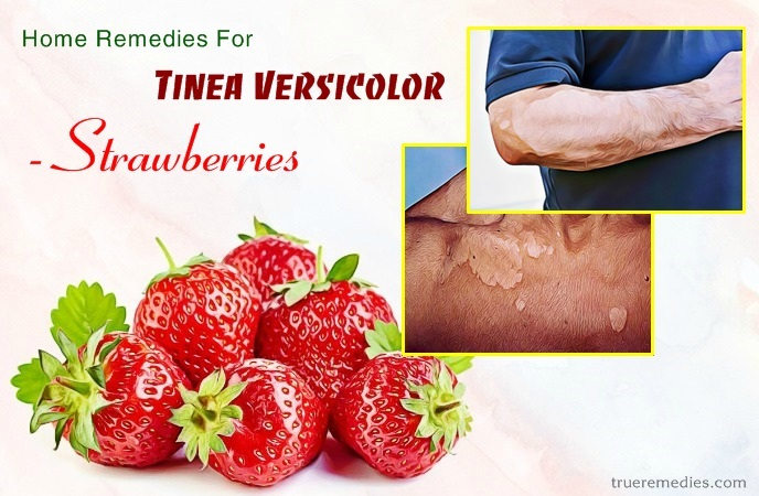 home remedies for tinea versicolor - strawberries