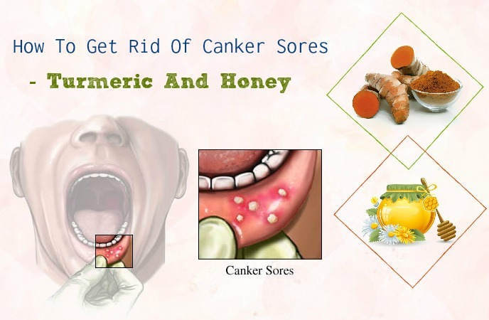 how to get rid of canker sores - turmeric and honey