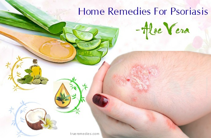 home remedies for psoriasis on face - aloe vera