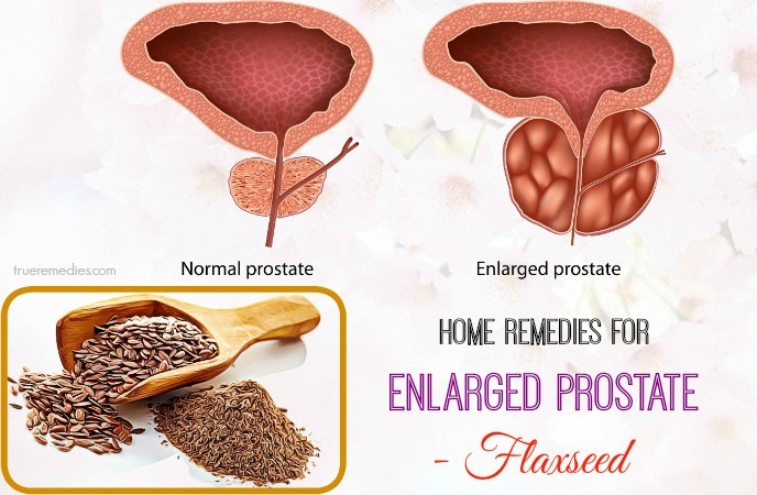 natural home remedies for enlarged prostate - flaxseed