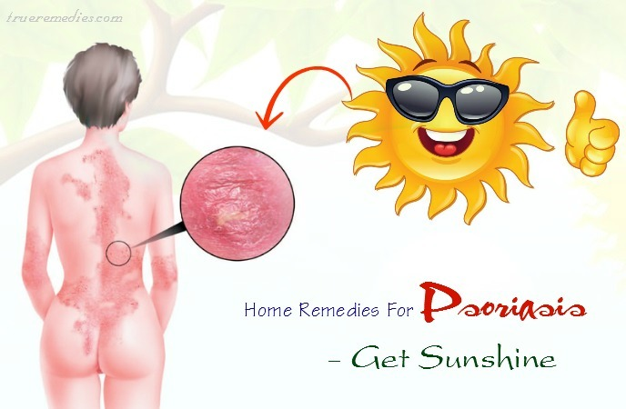 home remedies for psoriasis on legs - get sunshine