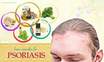 home remedies for psoriasis on face