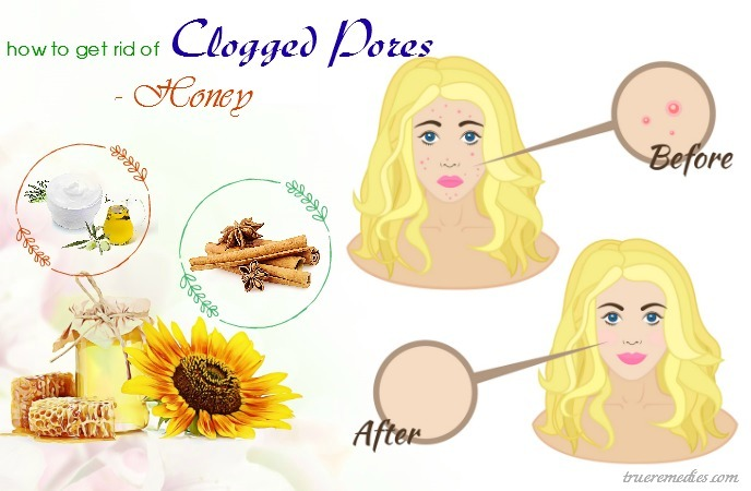 how to get rid of clogged pores on nose - honey