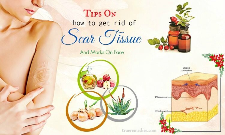 tips on how to get rid of scar tissue