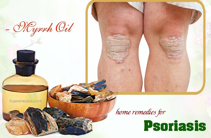 home remedies for psoriasis - myrrh oil