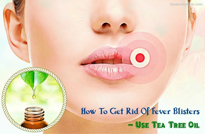 how to get rid of fever blisters - use tea tree oil