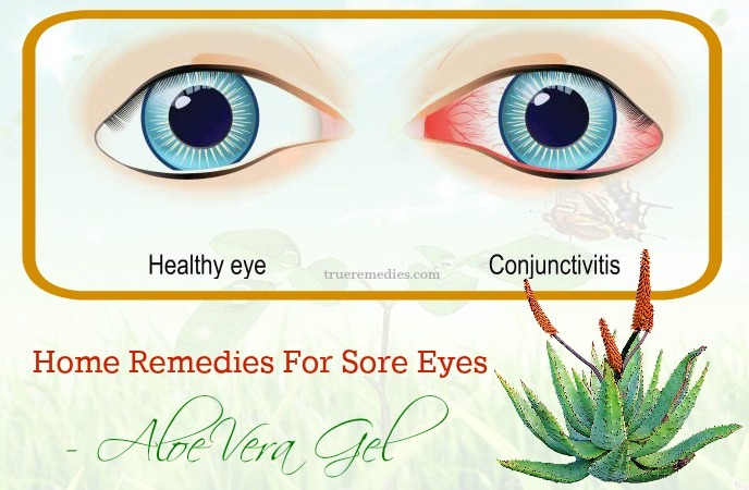 home remedies for sore eyes in adults - aloe vera gel