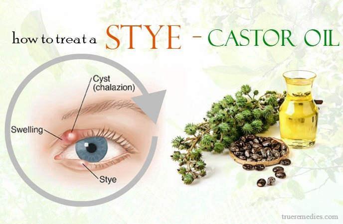 how to treat a stye - castor oil
