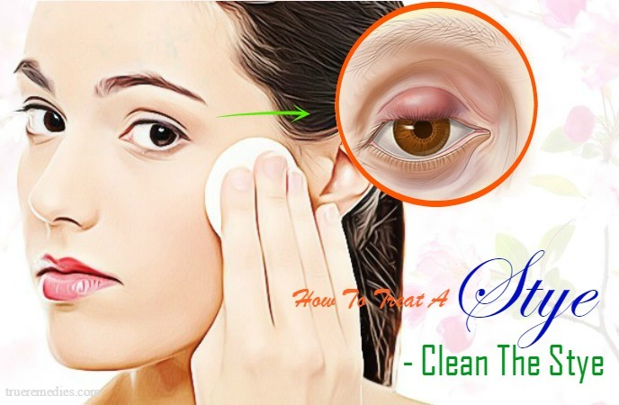 tips on how to treat a stye - clean the stye