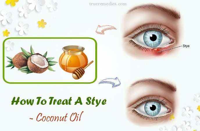 how to treat a stye on eyelid - coconut oil
