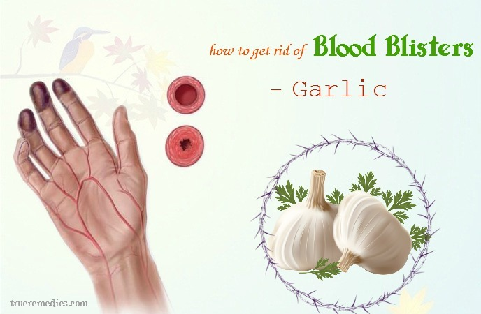 how to get rid of blood blisters - garlic