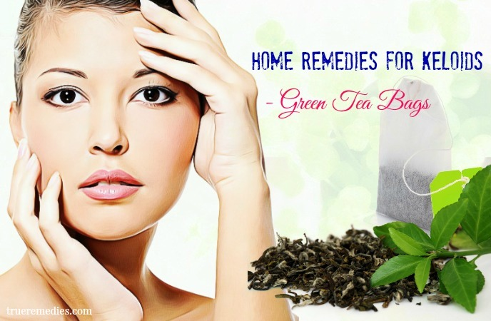 home remedies for keloids on face - green tea bags