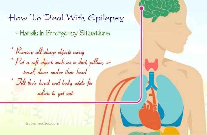 how to deal with epilepsy seizures - handle in emergency situations
